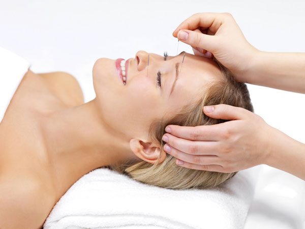 Acupuncture clinic Calgary