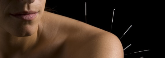How Acupuncture and Chinese Medicine Can Help Your Insomnia